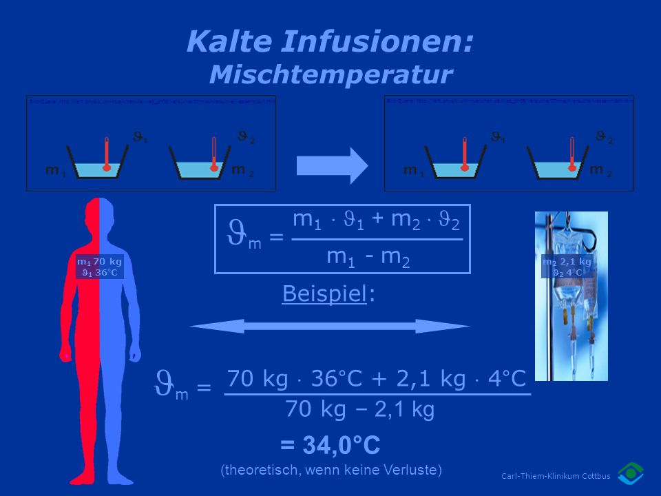 Kalte Infusionen: Mischtemperatur