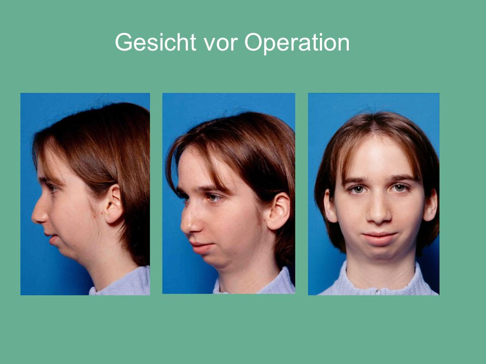 Gesicht vor Operation