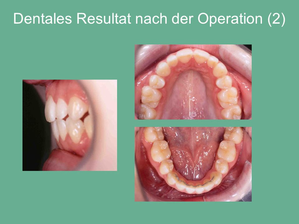 Dentales Resultat nach der Operation (2)