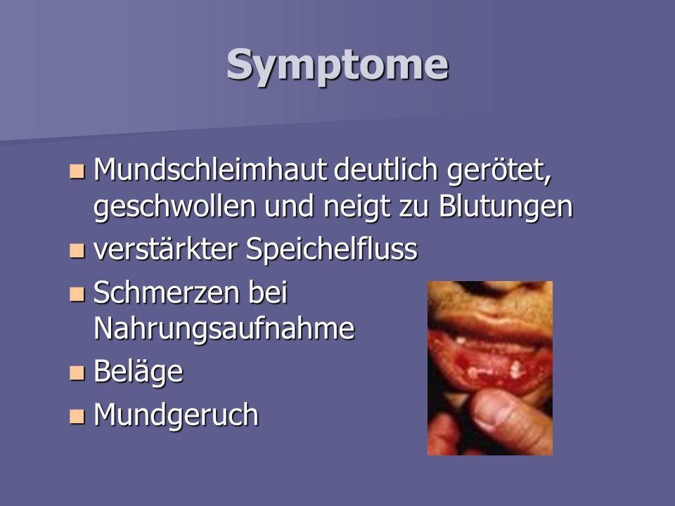 Symptome Mundschleimhaut deutlich gerötet, geschwollen und neigt zu Blutungen. verstärkter Speichelfluss.