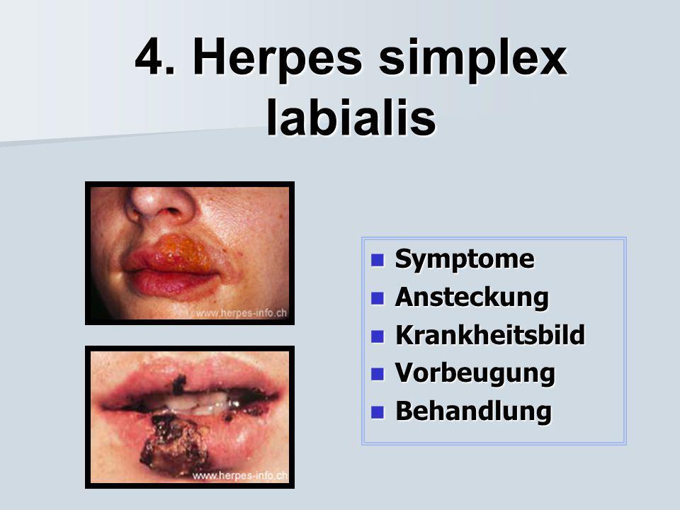 4. Herpes simplex labialis
