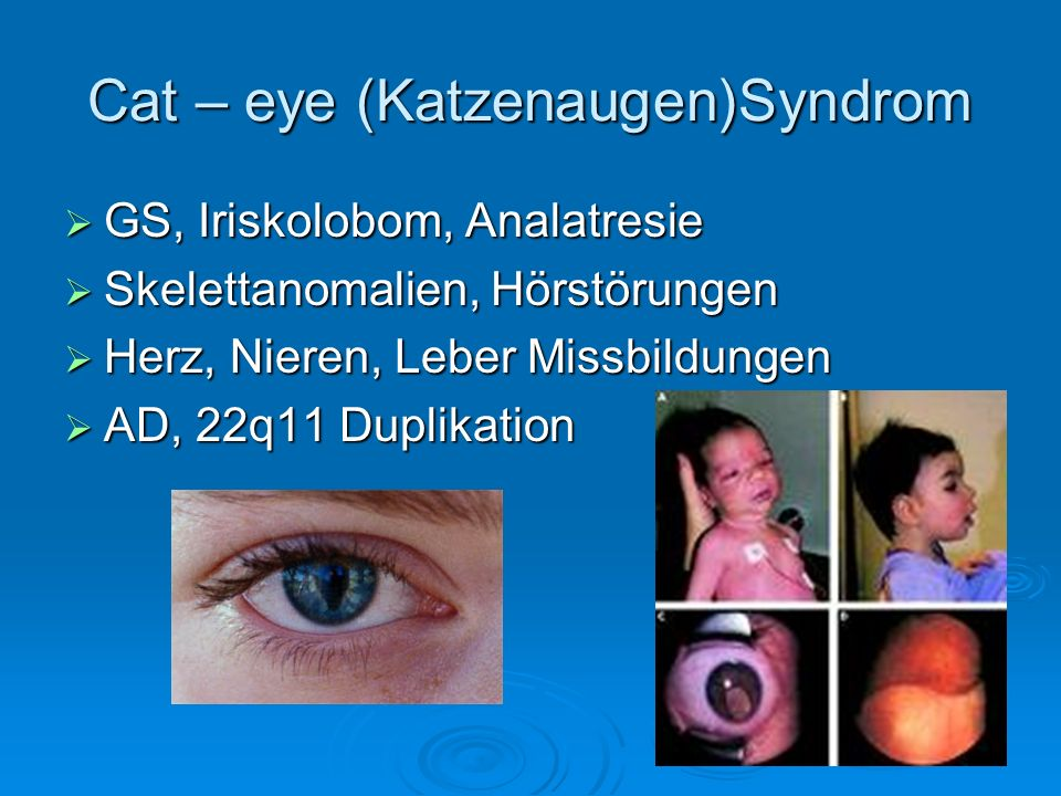 Cat – eye (Katzenaugen)Syndrom