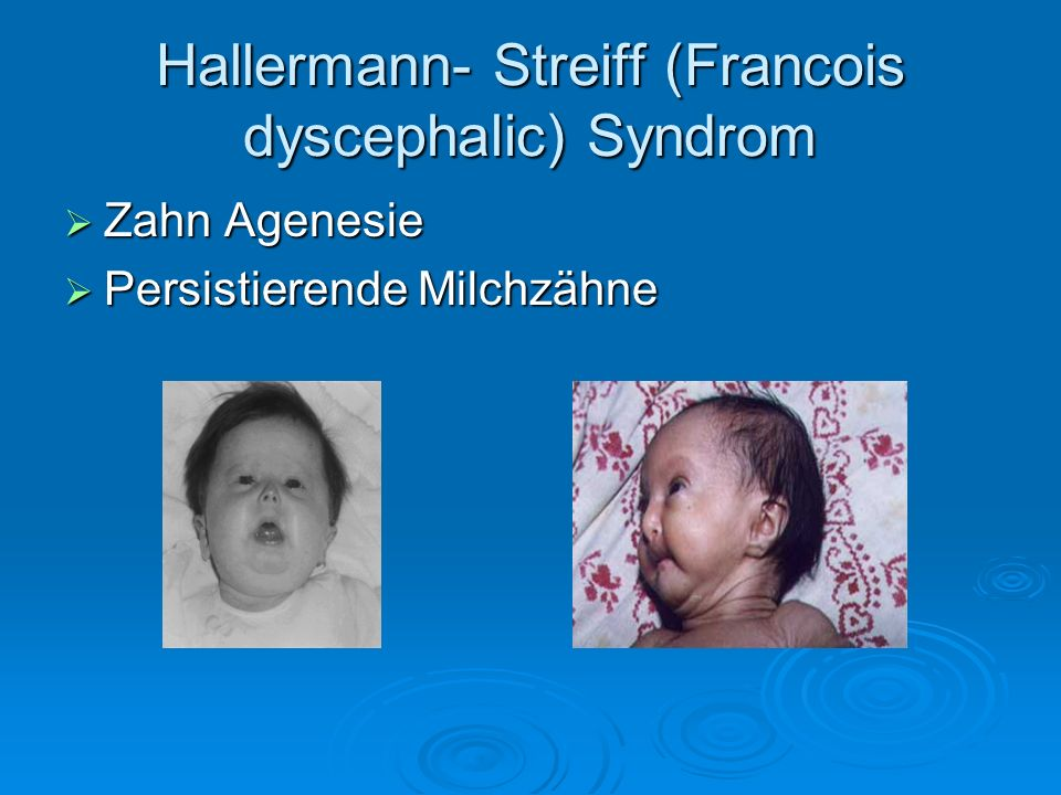 Hallermann- Streiff (Francois dyscephalic) Syndrom