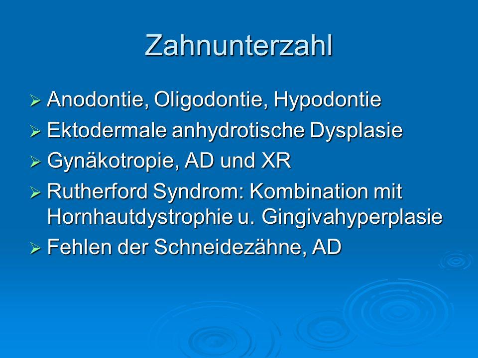 Zahnunterzahl Anodontie, Oligodontie, Hypodontie