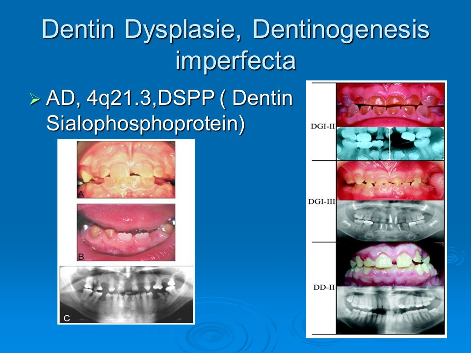 Dentin Dysplasie, Dentinogenesis imperfecta