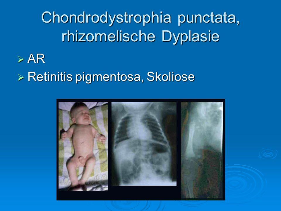Chondrodystrophia punctata, rhizomelische Dyplasie