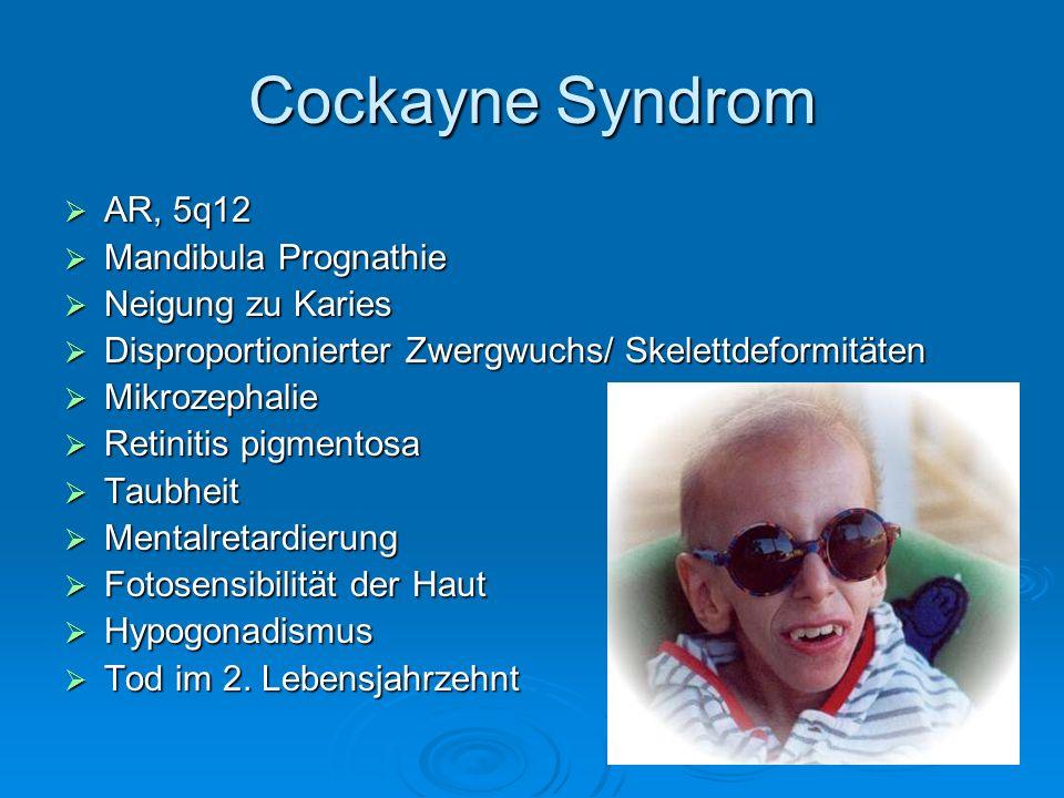 Cockayne Syndrom AR, 5q12 Mandibula Prognathie Neigung zu Karies