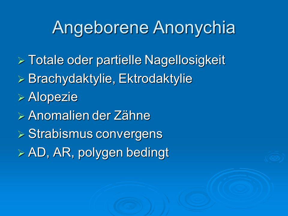 Angeborene Anonychia Totale oder partielle Nagellosigkeit