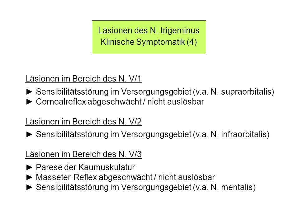 Läsionen des N. trigeminus Klinische Symptomatik (4)
