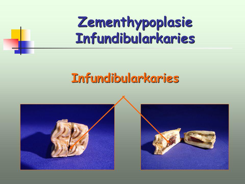 Zementhypoplasie Infundibularkaries