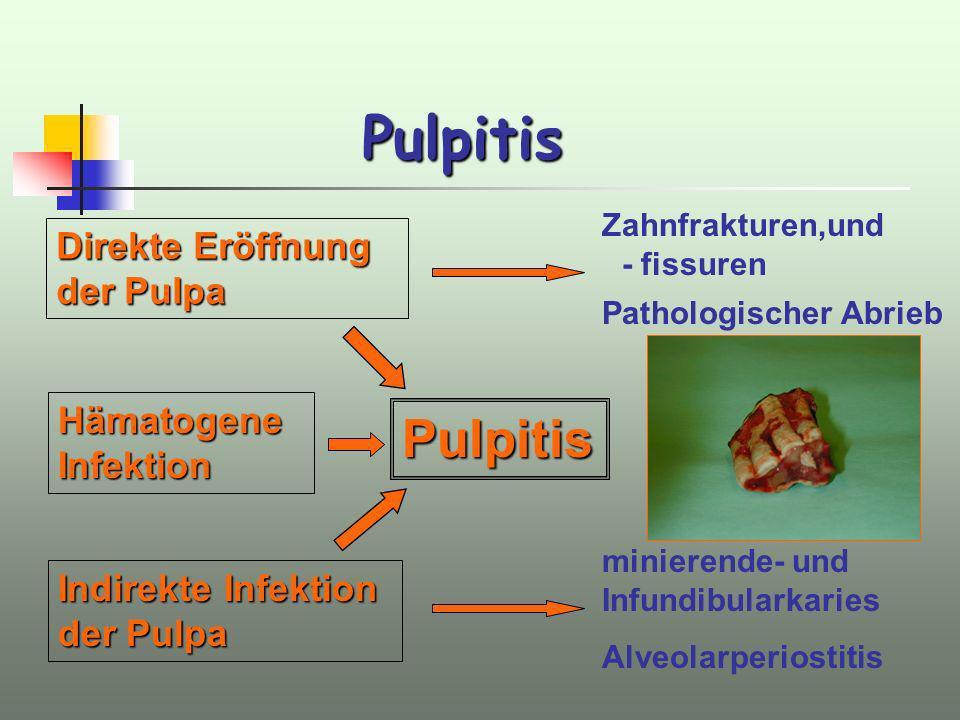 Pulpitis Pulpitis Direkte Eröffnung der Pulpa Hämatogene Infektion