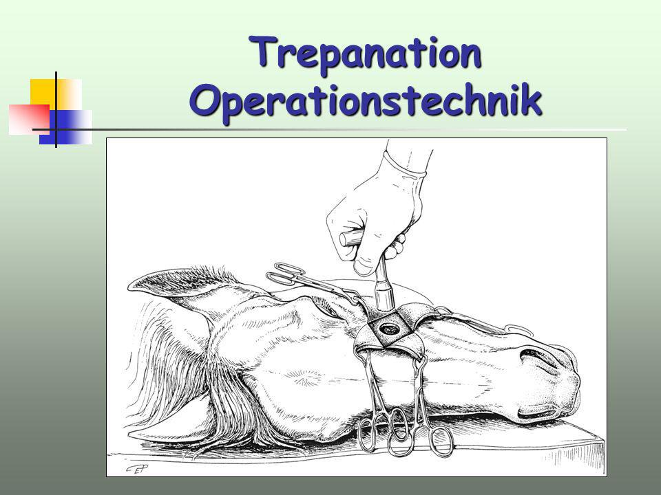 Trepanation Operationstechnik