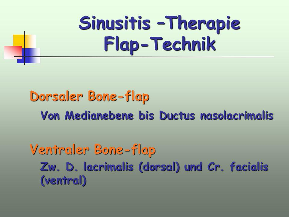 Sinusitis –Therapie Flap-Technik