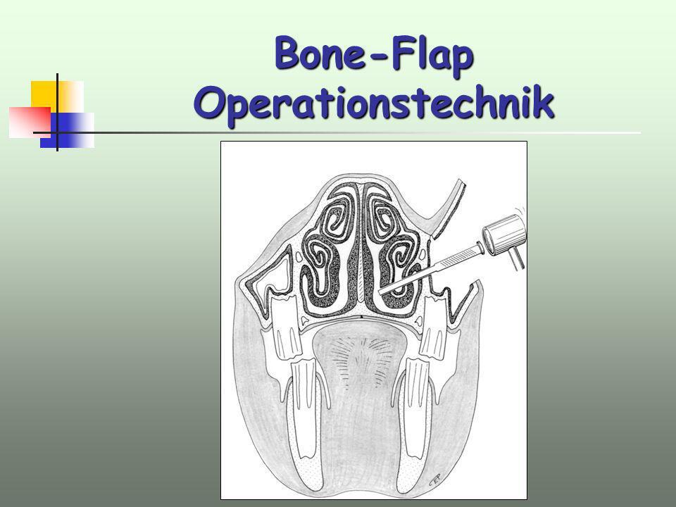 Bone-Flap Operationstechnik