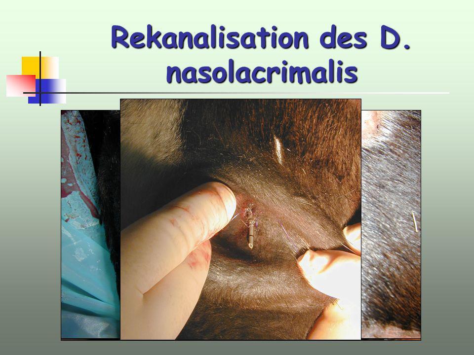 Rekanalisation des D. nasolacrimalis