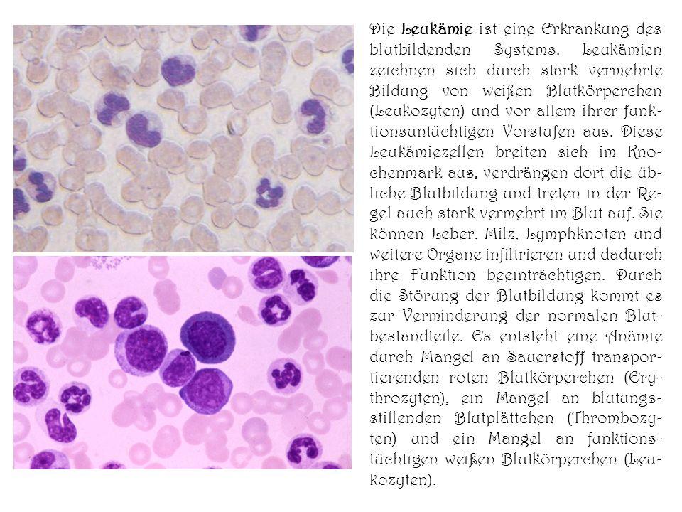 Die Leukämie ist eine Erkrankung des blutbildenden Systems