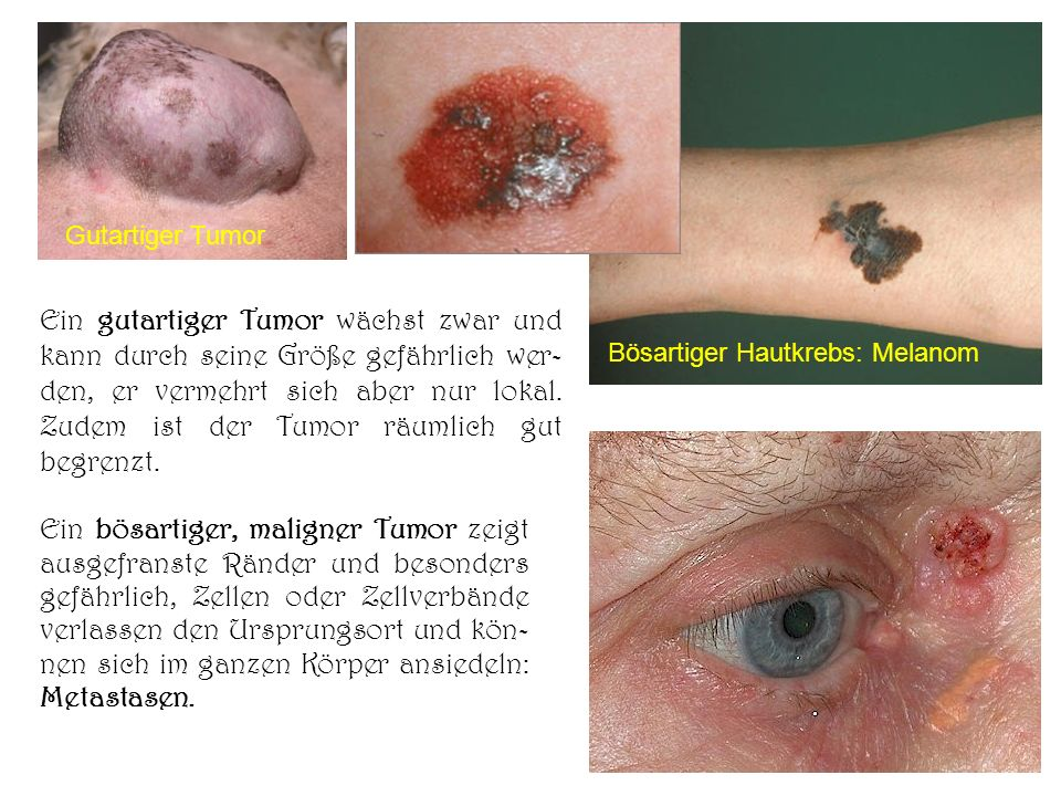 Gutartiger Tumor