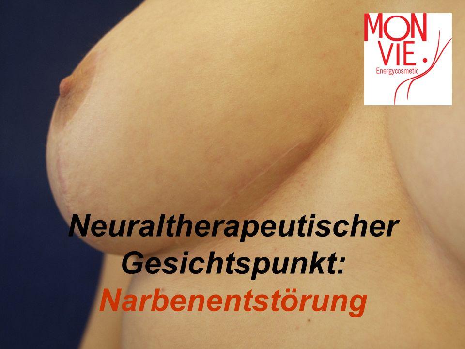 Neuraltherapeutischer Gesichtspunkt:
