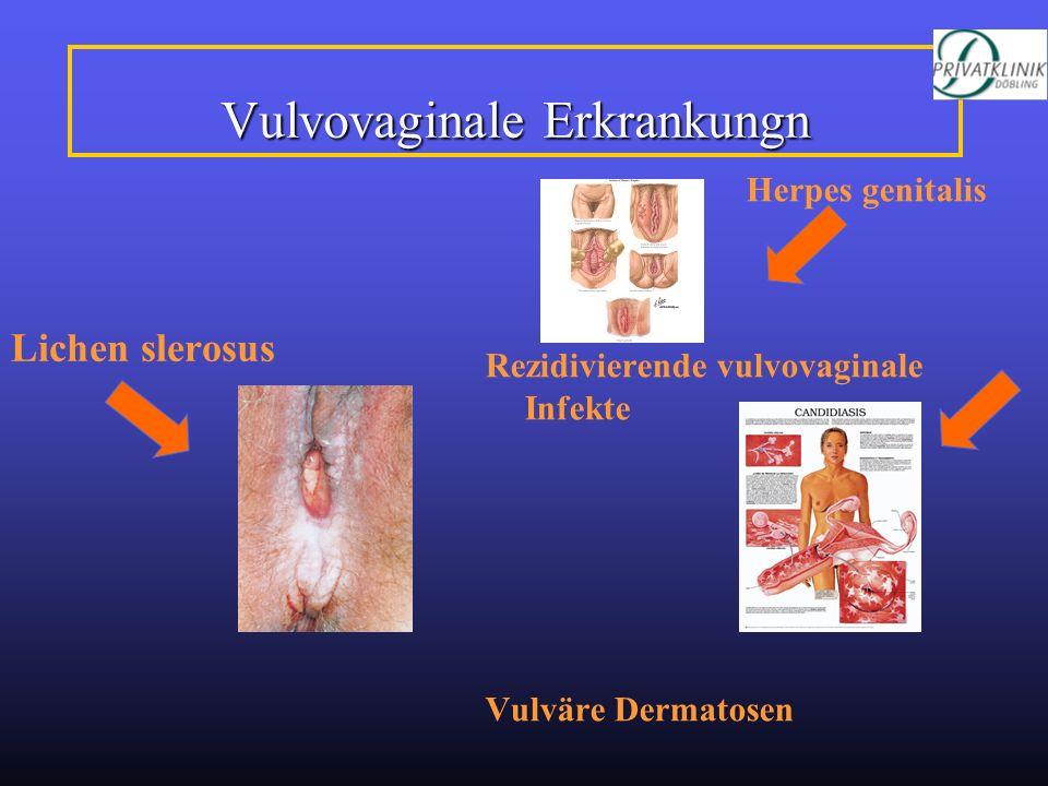Vulvovaginale Erkrankungn