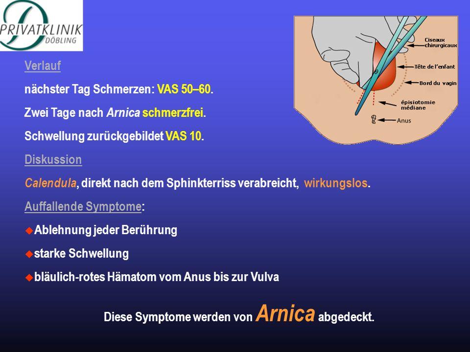 Diese Symptome werden von Arnica abgedeckt.