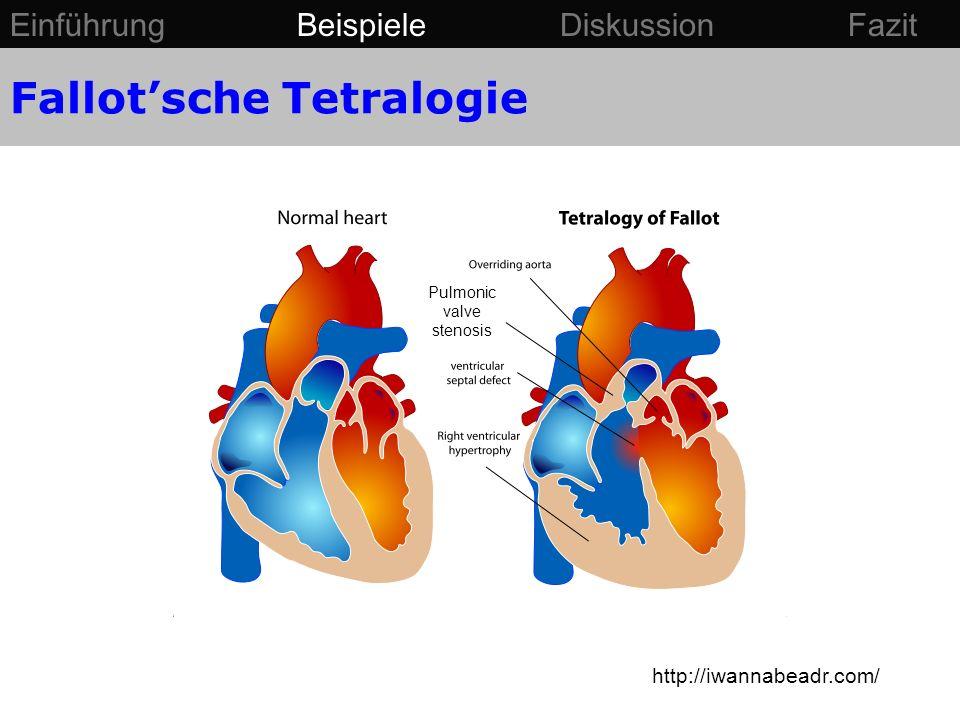 Fallot'sche Tetralogie