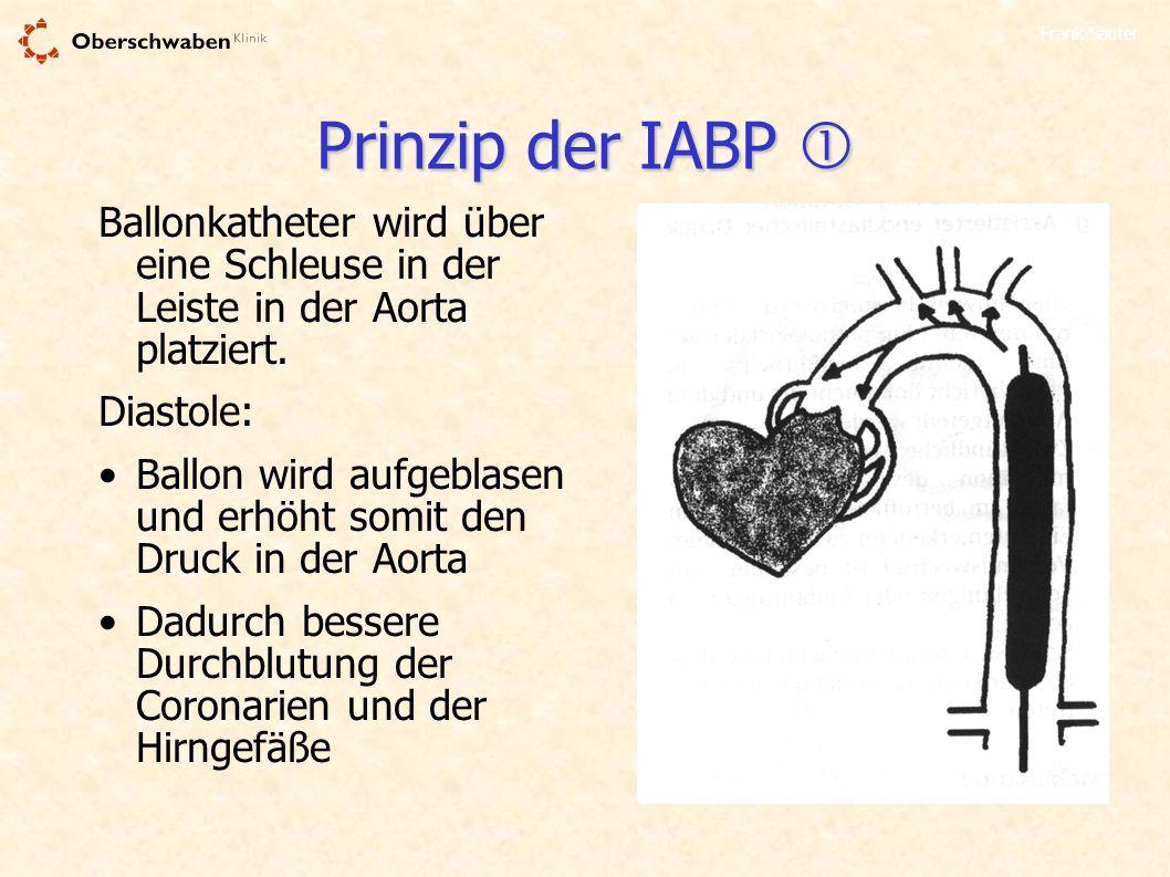 Prinzip der IABP  Ballonkatheter wird über eine Schleuse in der Leiste in der Aorta platziert. Diastole: