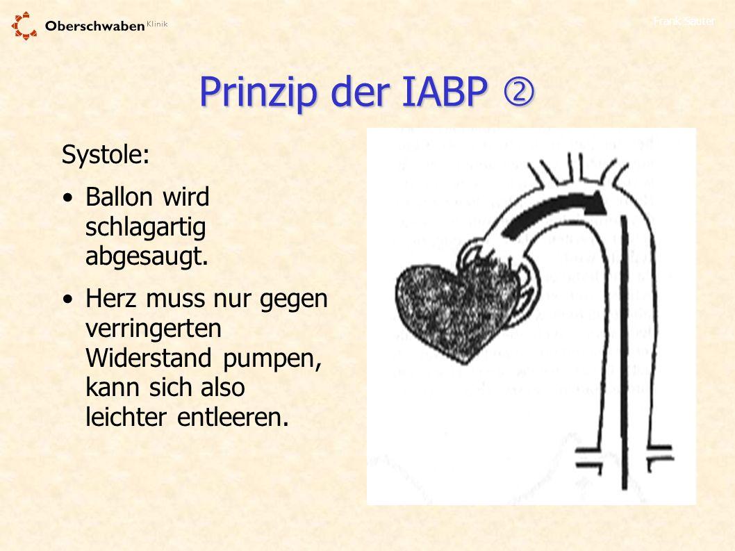 Prinzip der IABP  Systole: Ballon wird schlagartig abgesaugt.