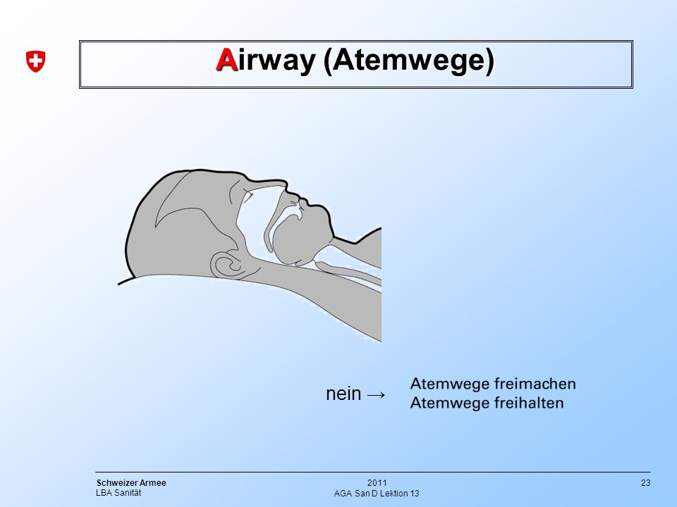 Airway (Atemwege) nein → AGA San D Lektion 13
