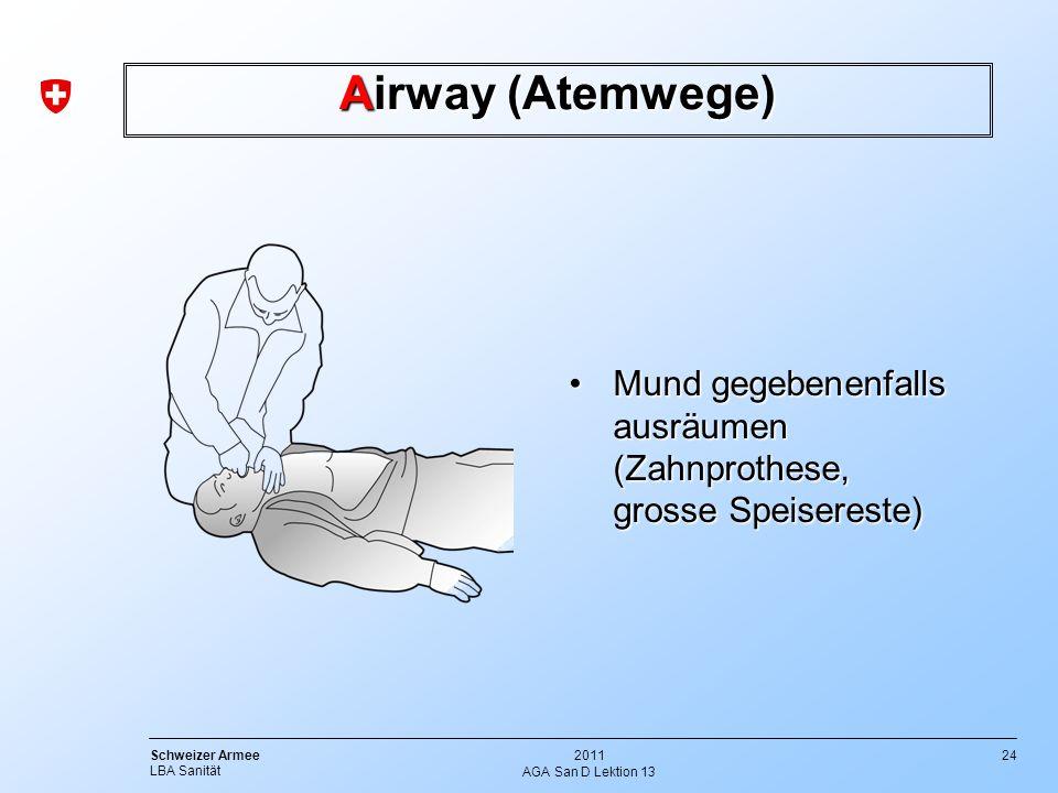 Airway (Atemwege) Mund gegebenenfalls ausräumen