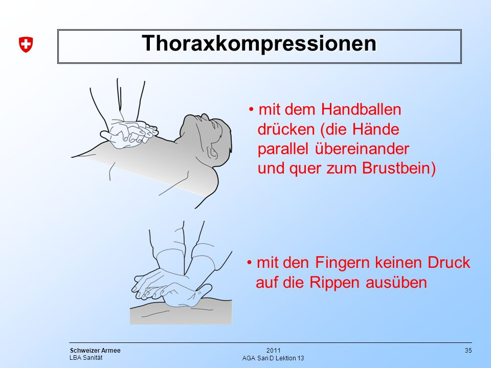 Thoraxkompressionen mit dem Handballen drücken (die Hände parallel übereinander und quer zum Brustbein)