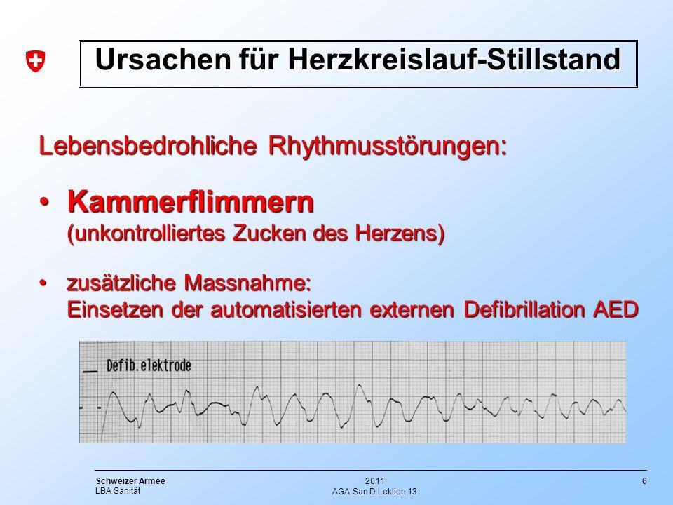 Ursachen für Herzkreislauf-Stillstand