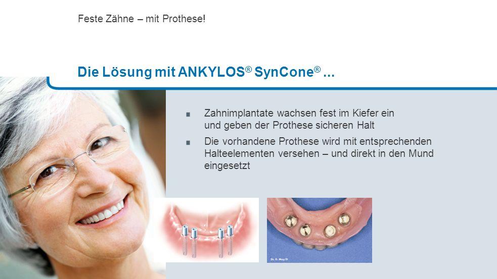 Die Lösung mit ANKYLOS® SynCone® ...