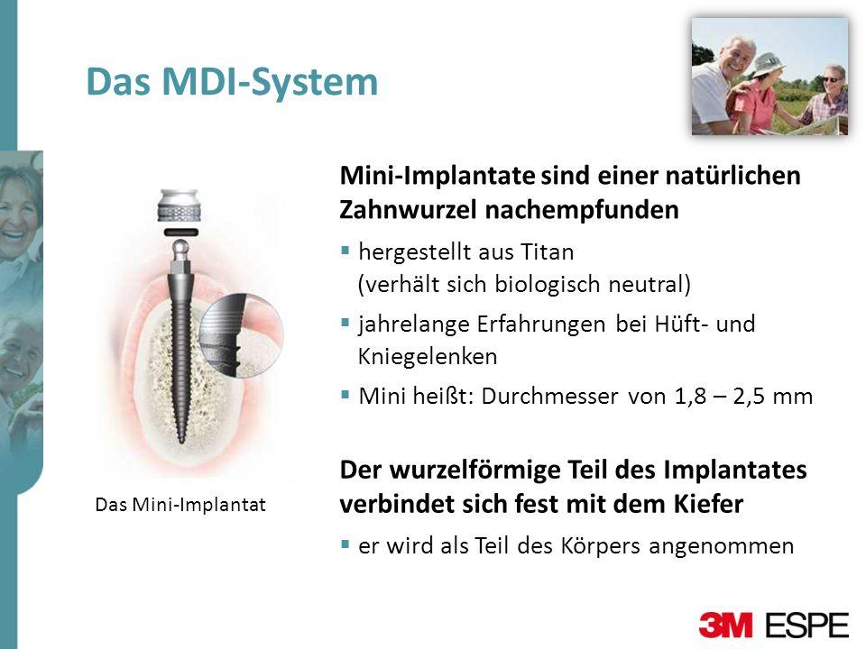 Das MDI-System Mini-Implantate sind einer natürlichen Zahnwurzel nachempfunden. hergestellt aus Titan.