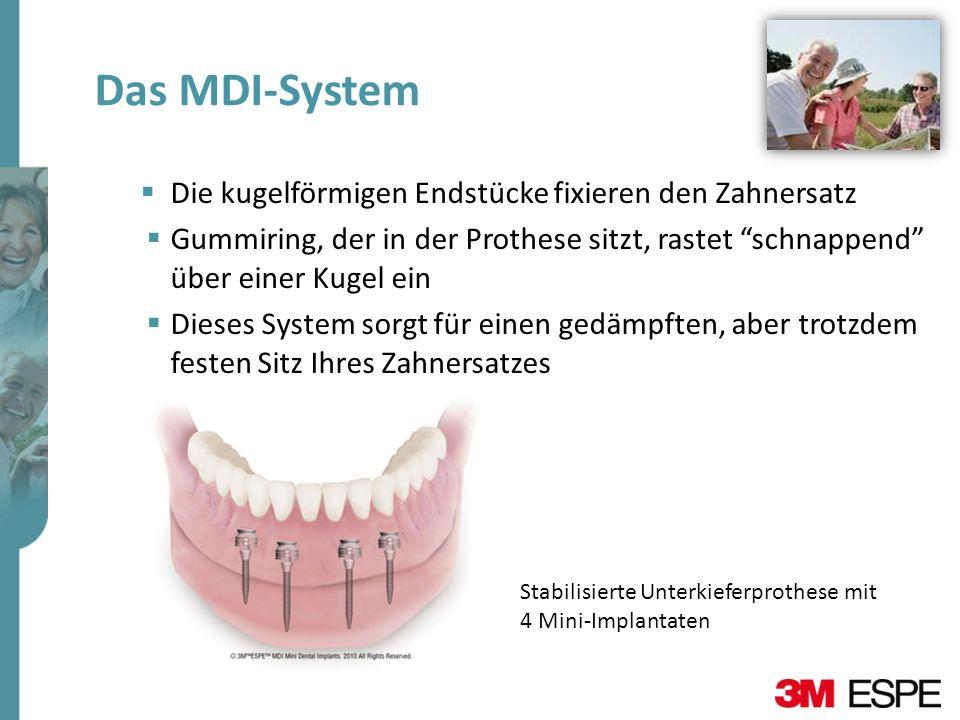 Das MDI-System Die kugelförmigen Endstücke fixieren den Zahnersatz