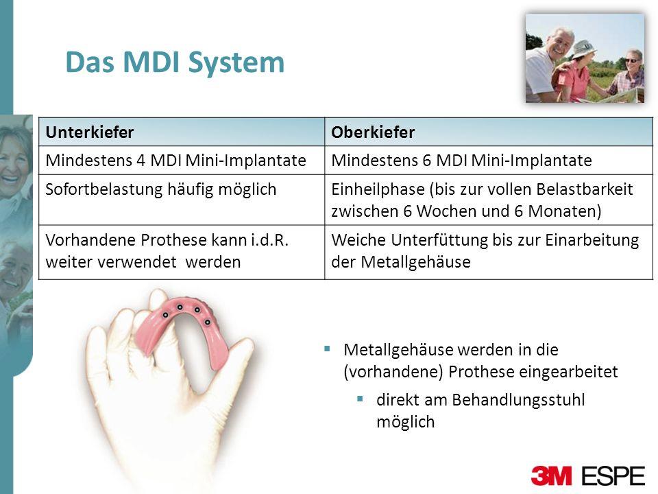 Das MDI System Unterkiefer Oberkiefer Mindestens 4 MDI Mini-Implantate