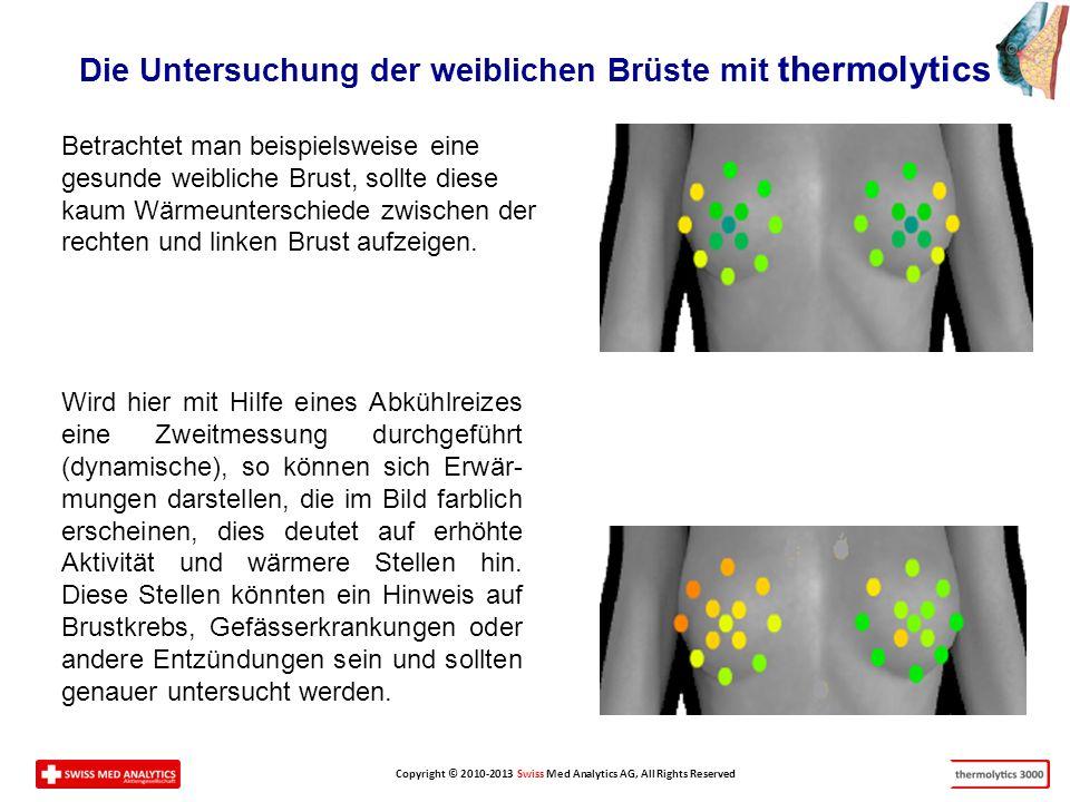 Die Untersuchung der weiblichen Brüste mit thermolytics