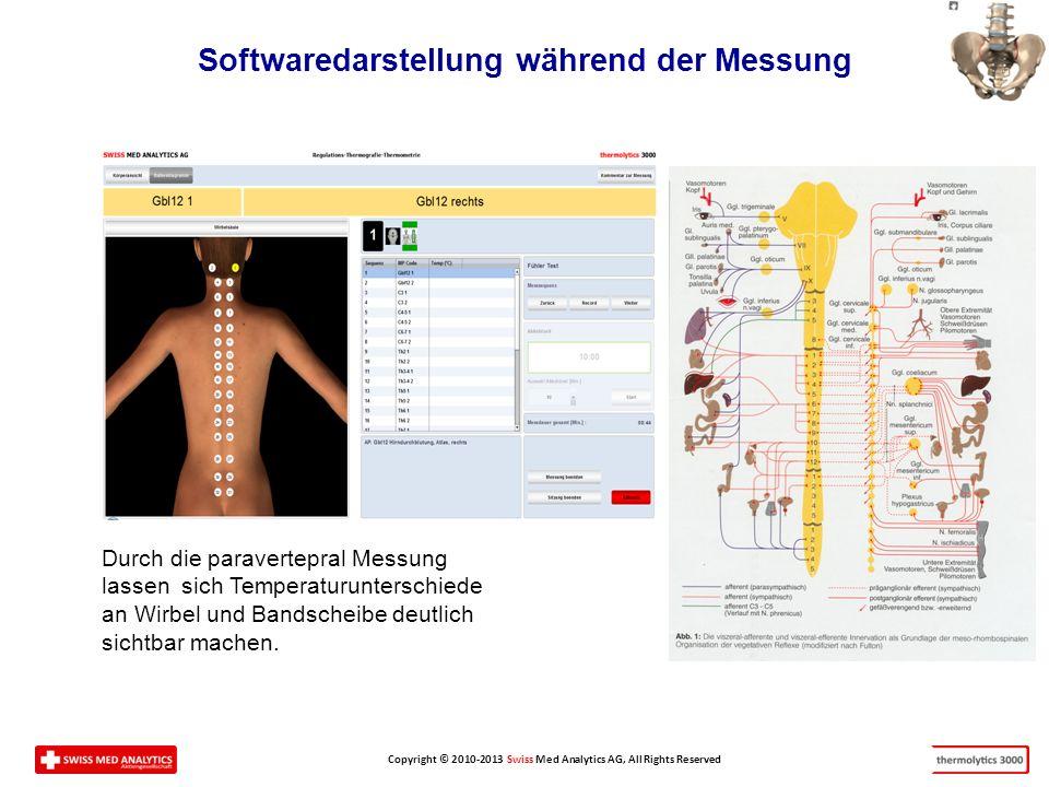 Softwaredarstellung während der Messung