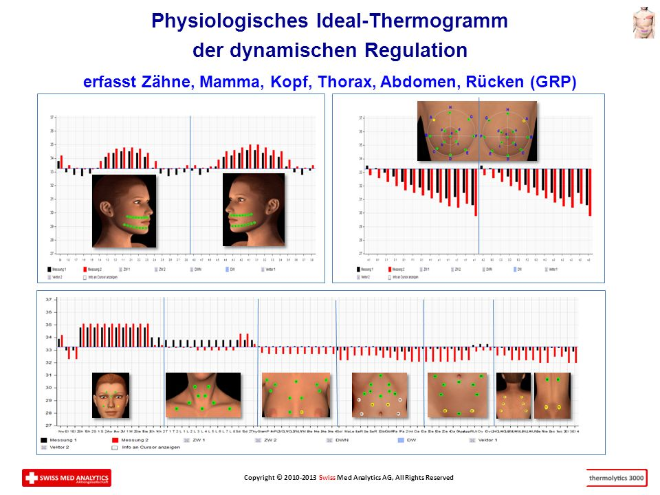 Physiologisches Ideal-Thermogramm der dynamischen Regulation