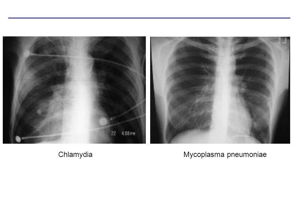 Chlamydia Mycoplasma pneumoniae