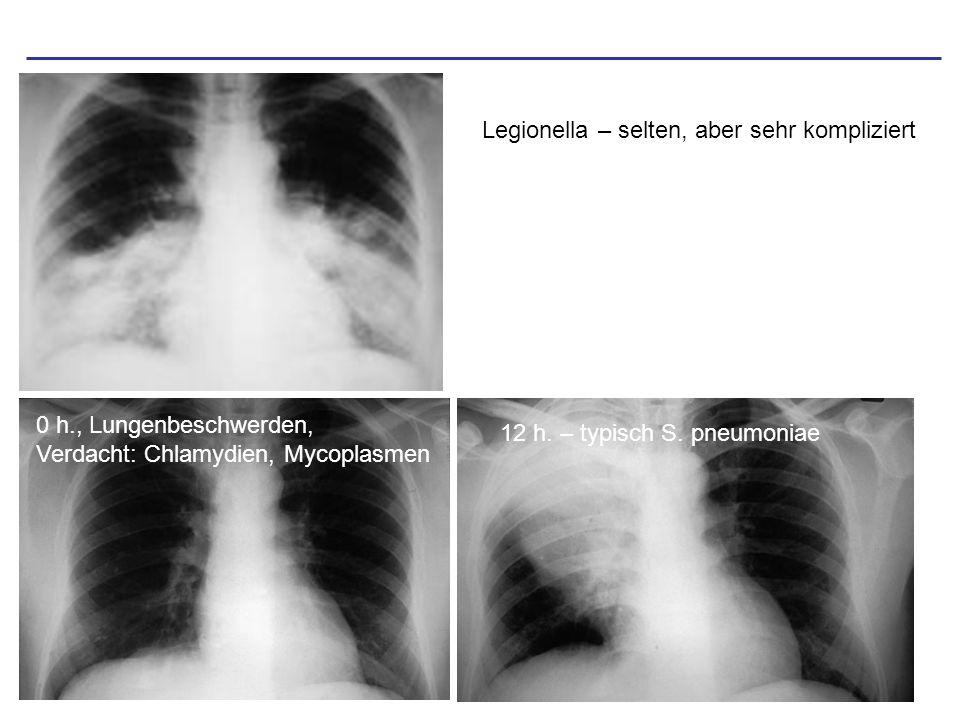 Legionella – selten, aber sehr kompliziert