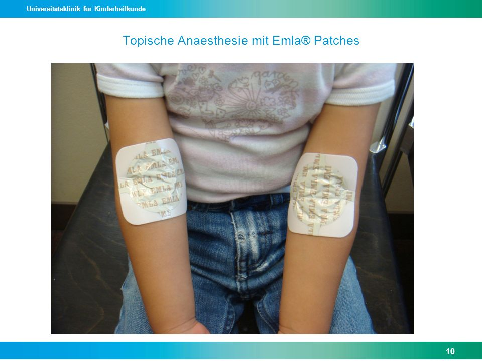 Topische Anaesthesie mit Emla® Patches