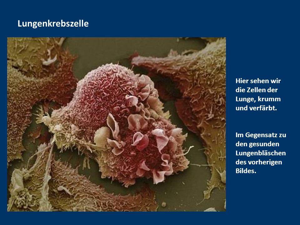 Lungenkrebszelle Hier sehen wir die Zellen der Lunge, krumm und verfärbt.