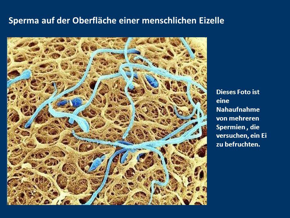 Sperma auf der Oberfläche einer menschlichen Eizelle