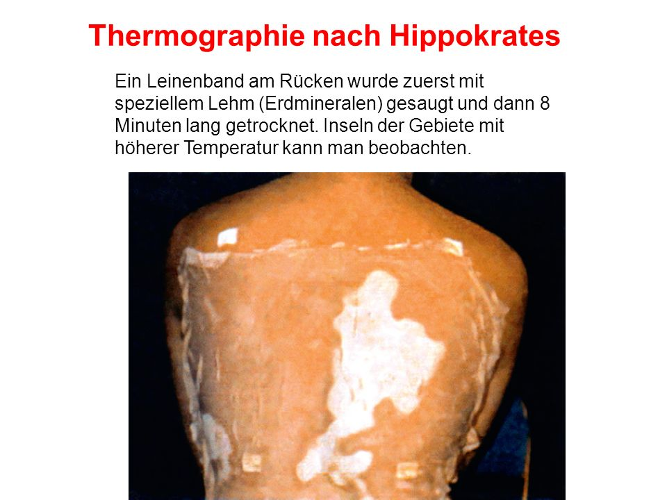 Thermographie nach Hippokrates