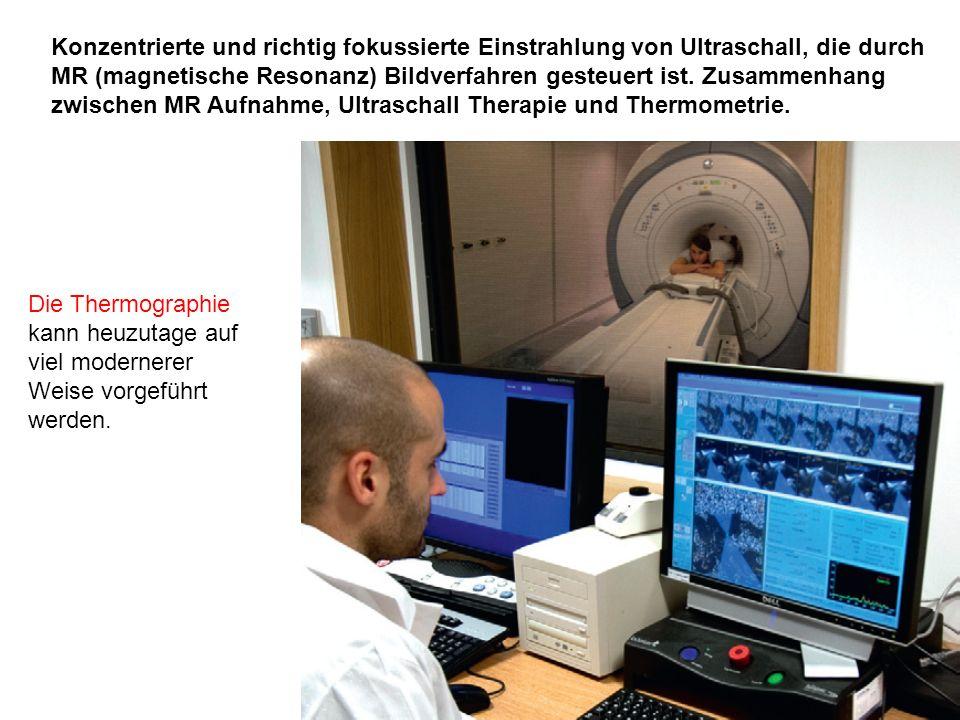Konzentrierte und richtig fokussierte Einstrahlung von Ultraschall, die durch MR (magnetische Resonanz) Bildverfahren gesteuert ist. Zusammenhang zwischen MR Aufnahme, Ultraschall Therapie und Thermometrie.