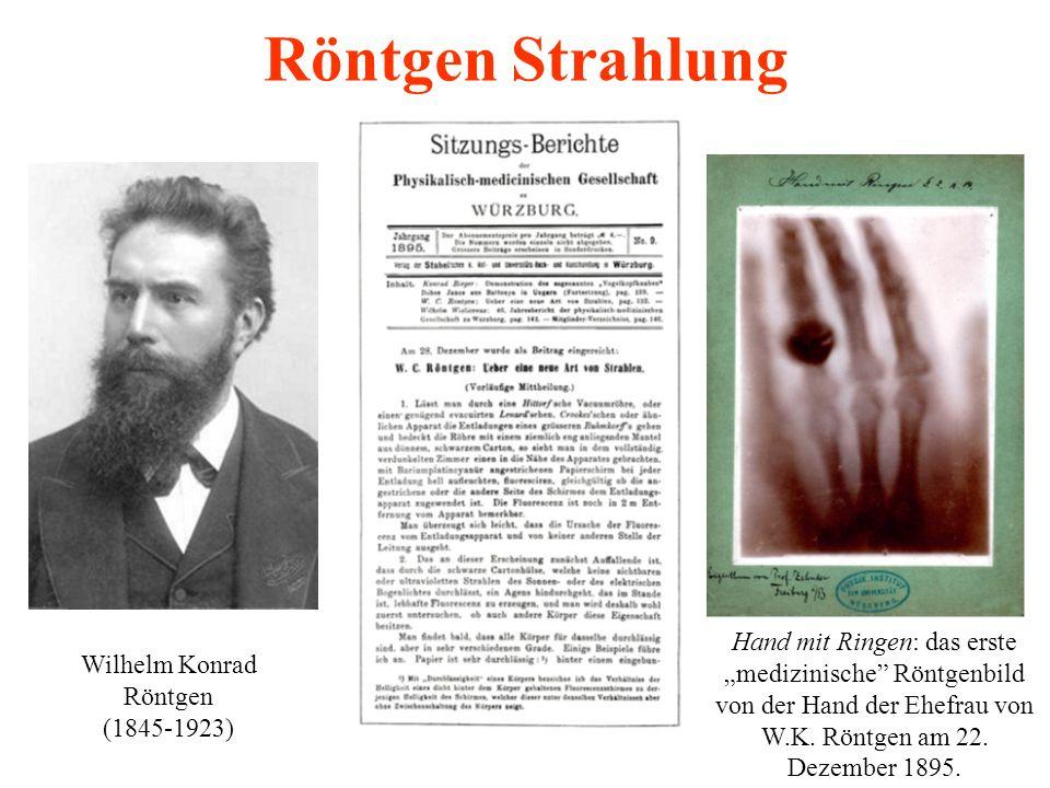"""Röntgen Strahlung Hand mit Ringen: das erste """"medizinische Röntgenbild von der Hand der Ehefrau von W.K. Röntgen am 22. Dezember 1895."""