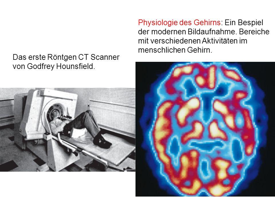 Physiologie des Gehirns: Ein Bespiel der modernen Bildaufnahme
