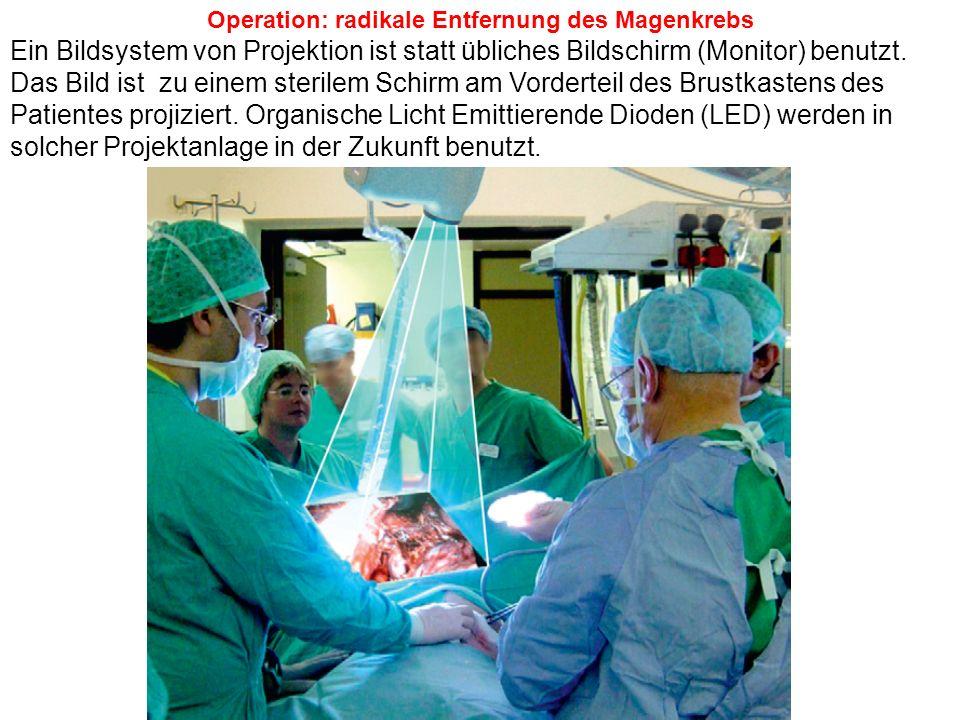 Operation: radikale Entfernung des Magenkrebs