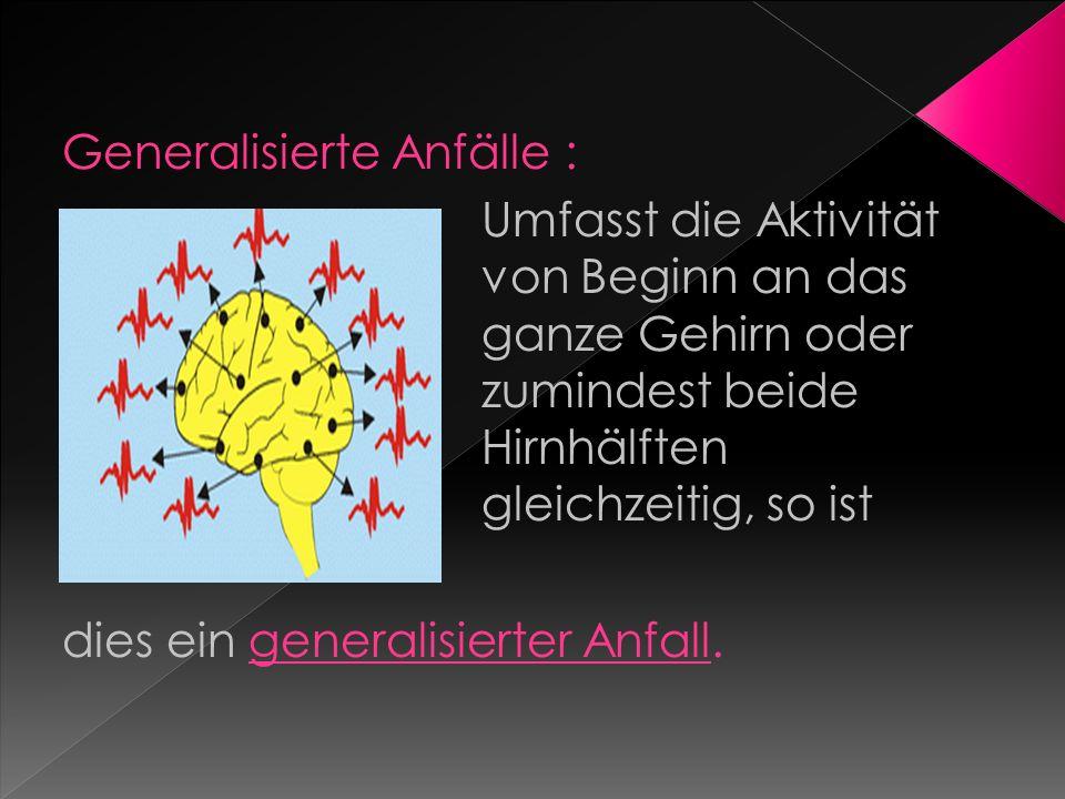Generalisierte Anfälle :