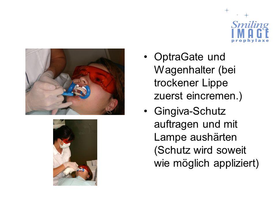 OptraGate und Wagenhalter (bei trockener Lippe zuerst eincremen.)